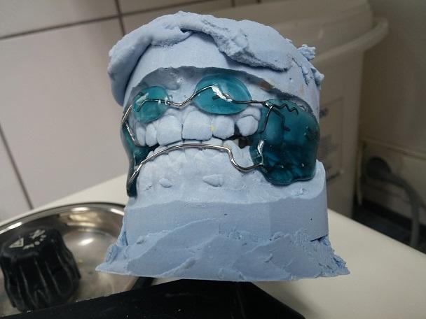 experientele mele la dentist